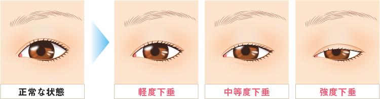 眼瞼下垂について