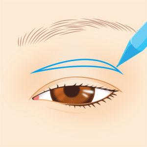 眼瞼下垂症手術01