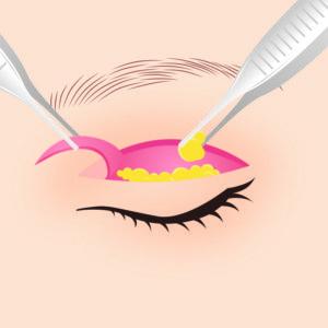 眼瞼下垂症手術02
