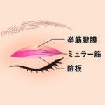 眼瞼下垂症手術03