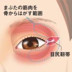 目尻靭帯移動術2
