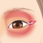 目尻靭帯移動術3