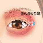 目尻靭帯移動術4