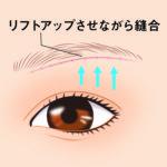 眉下皮膚切除04