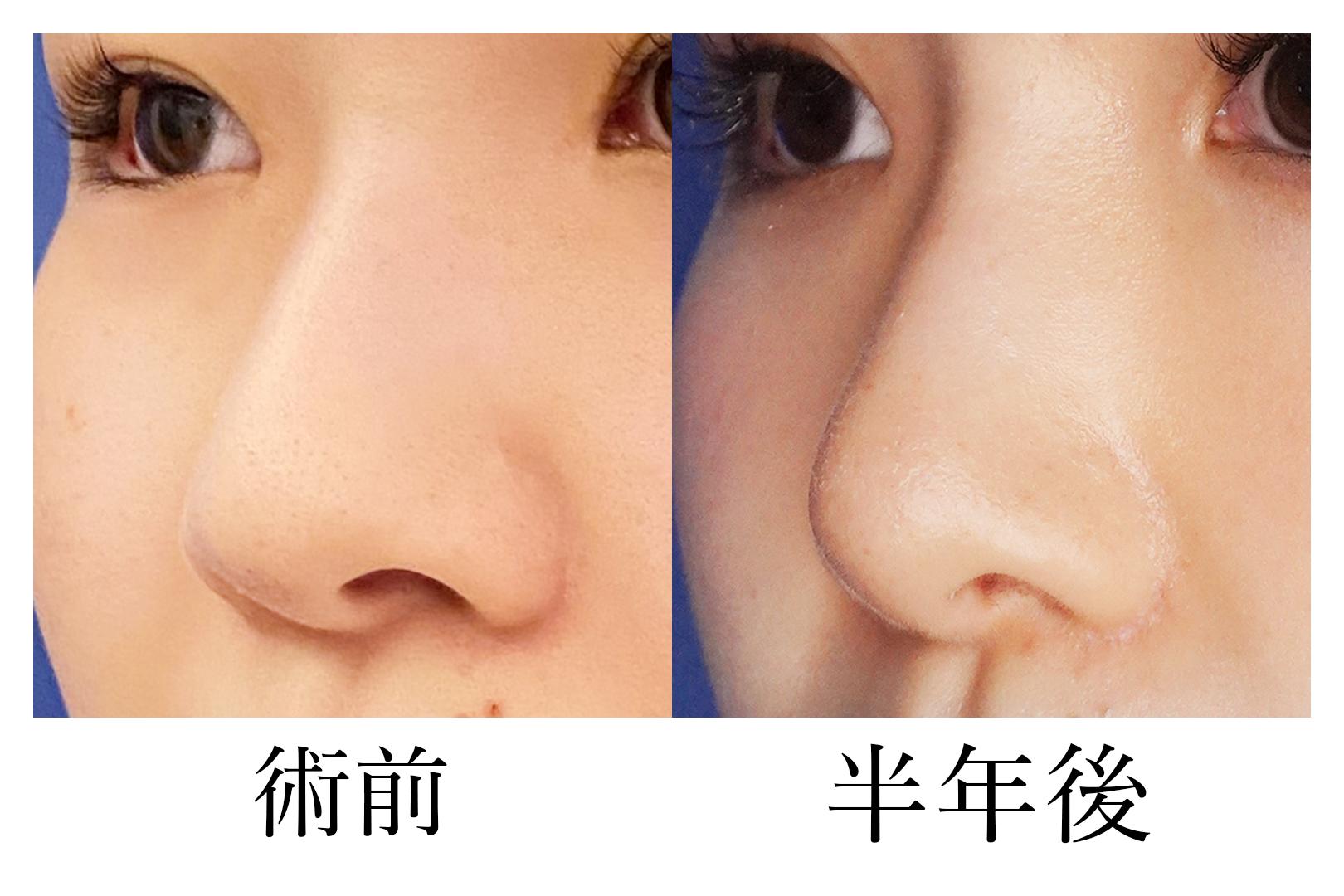 鼻尖形成_b
