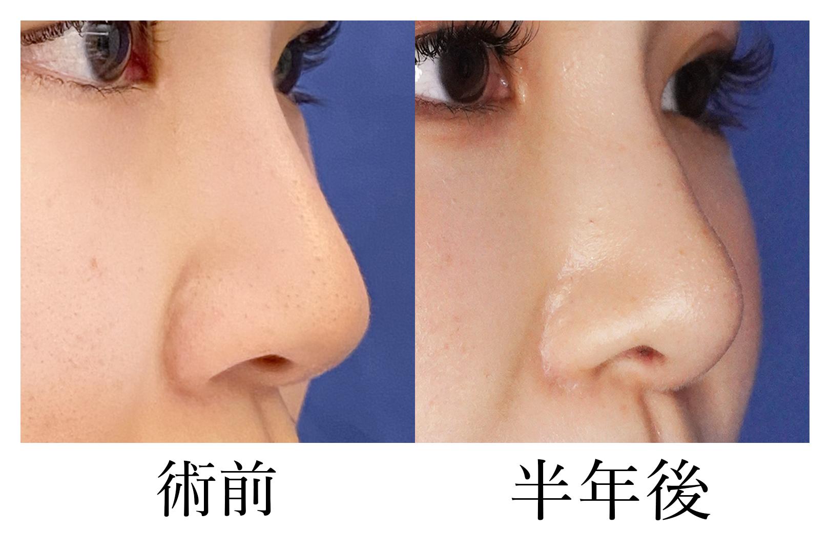 鼻尖形成_d