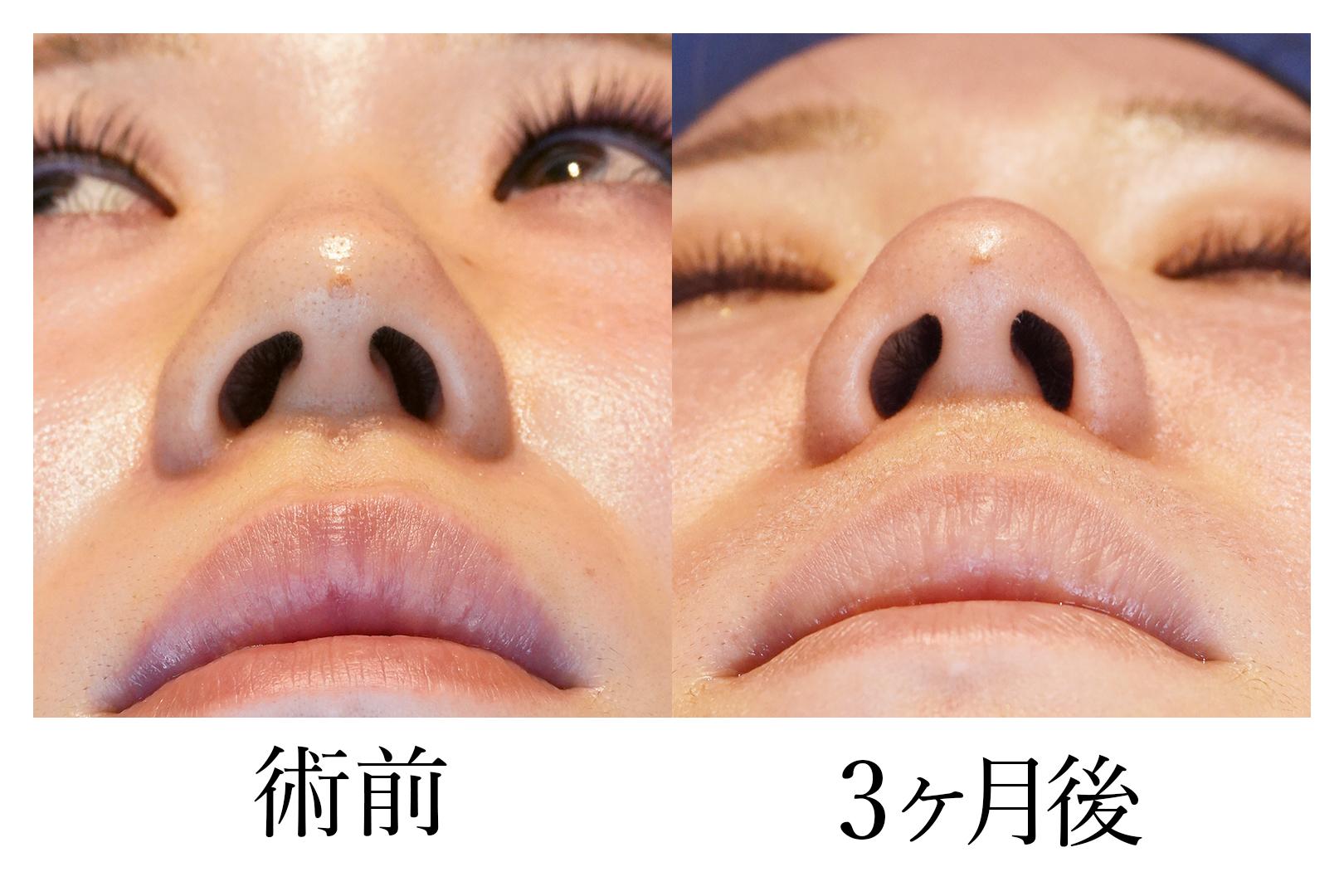 鼻翼縮小_b