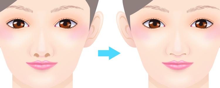 鼻孔縁軟骨移植