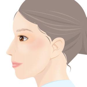 カウンセリングにて患者様が希望する鼻の形を伺い、デザインを決定し、プロテーゼを挿入予定の箇所にマーキングを行います。