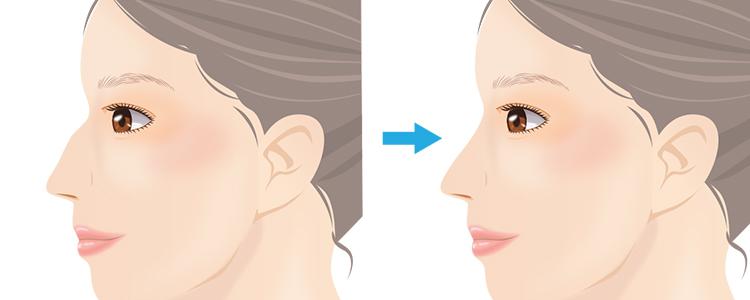 わし鼻段鼻修正