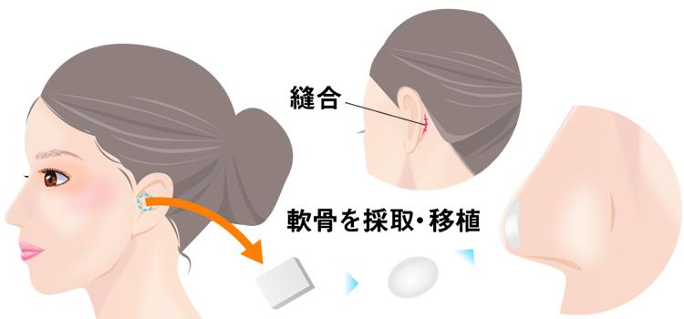 耳介軟骨移植