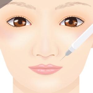 ガミースマイル手術