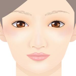 口唇増大術