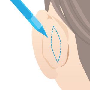 折れ耳デザイン