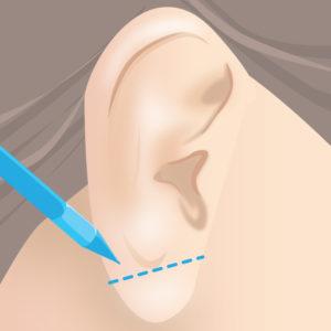 耳たぶ縮小術(マーキング)