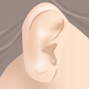 耳たぶ縮小術(縫合)