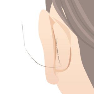 折れ耳縫合
