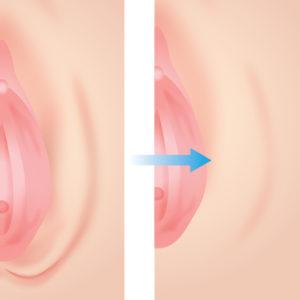 大陰唇増大手術